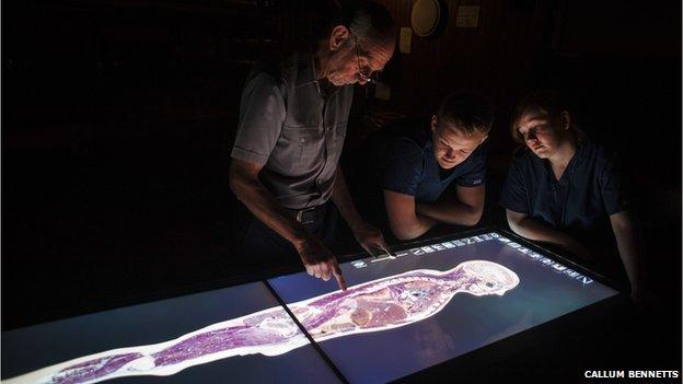 virtual cadaver