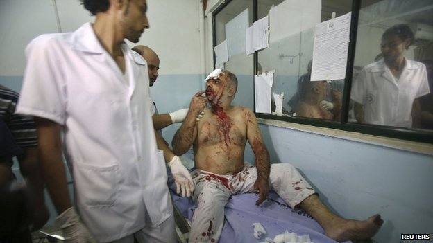 A Palestinian man, who medics said was wounded in an Israeli air strike in Khan Younis. Photo: 8 July 2014