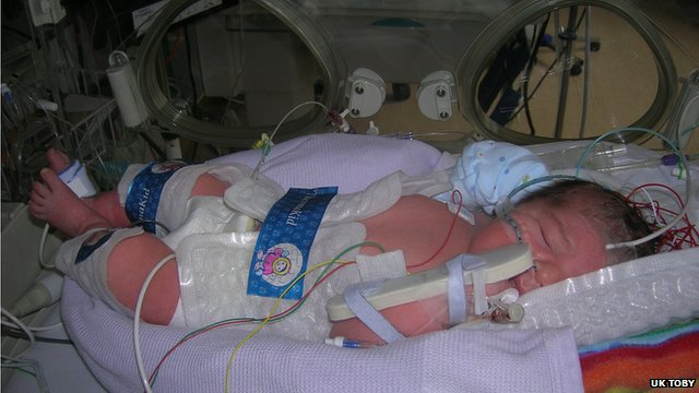Babies at risk of developing brain damage after suffering low oxygen levels at birth are given the treatment
