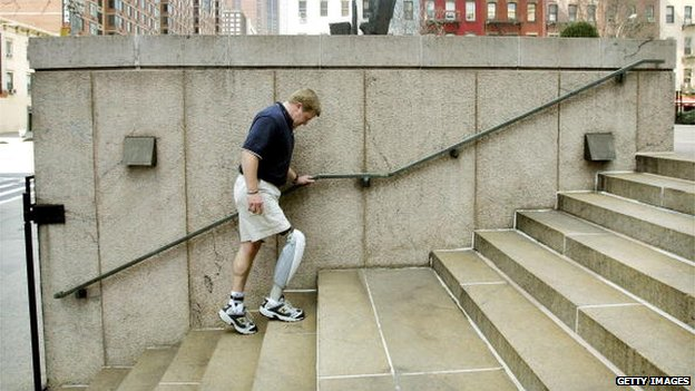 A man walking up stairs wearing one above knee prosthetic leg