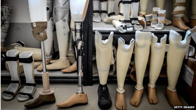 A line of prosthetic legs