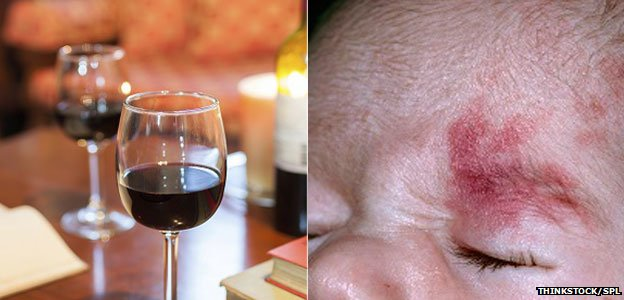 Port wine stains are harmless marks seen on the face