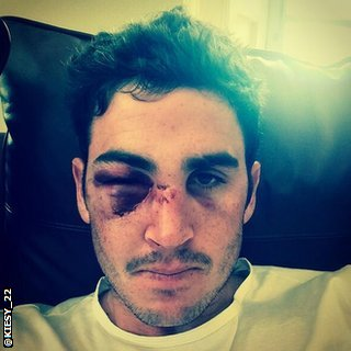 Craig Kieswetter tweeted a picture of his injuries on Sunday