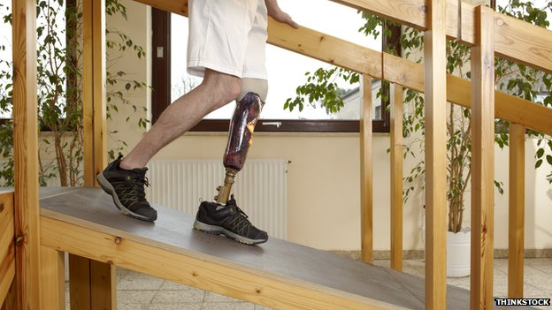 Man walking down a ramp in a below knee prosthetic