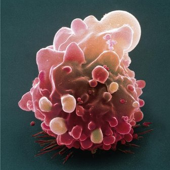 Cancer cells are typically large and divide rapidly in a chaotic, uncontrolled manner