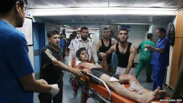 An injured Gazan is treated at Gaza's Shifa Hospital, 18 July