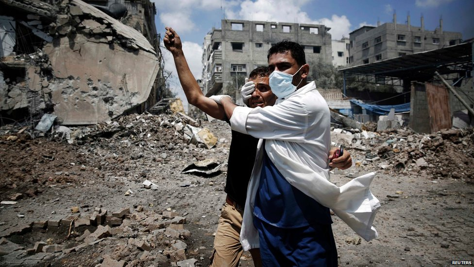 A medic helps a Palestinian in the Shejaia neighbourhood, which was heavily shelled by Israel during fighting, in Gaza City July 20, 2014