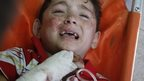 A Palestinian child, wounded in an Israeli strike on a compound housing a UN school in Beit Hanoun, in the northern Gaza, cries at the emergency room of the Kamal Adwan hospital in Beit Lahiya, Thursday 24 July 2014