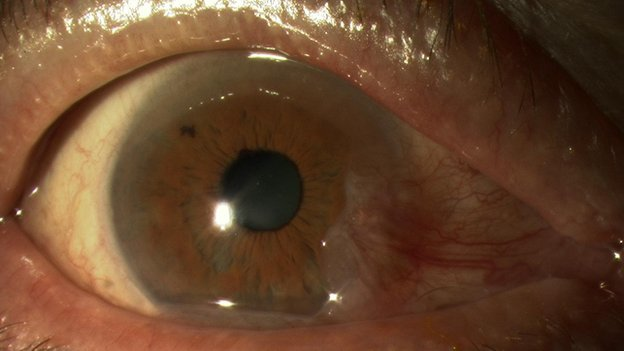 A close up of an eye