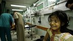 Palestinian girl receives treatment at the Kamal Edwan hospital in Beit Lahia in the  Gaza Strip on 31 July 2014
