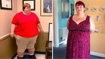 Zaneta Jones before and after she had weight-loss surgery