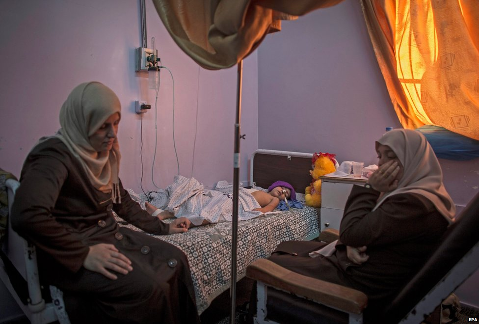 Relatives sit by the bedside of a badly injured Palestinian boy in Beit Lahia, Gaza, 1 August 2014