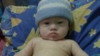 Gammy, the baby boy abandoned by an Australian couple