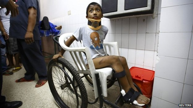 A boy waits to get his X-ray done at a hospital in Kathmandu after being rescued from a landslide in northeast Nepal August 2, 2014