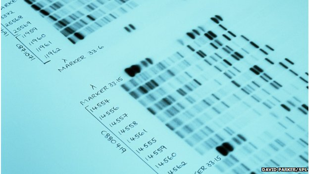 DNA autoradiograms