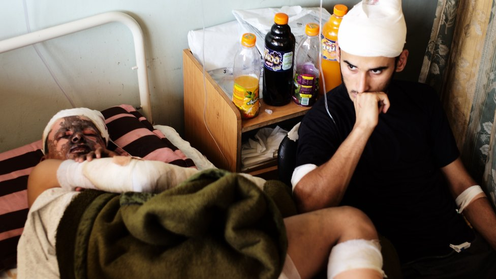 Ahmed, left, and brother Mahmoud in hospital in Khan Yunis. Aug 2014