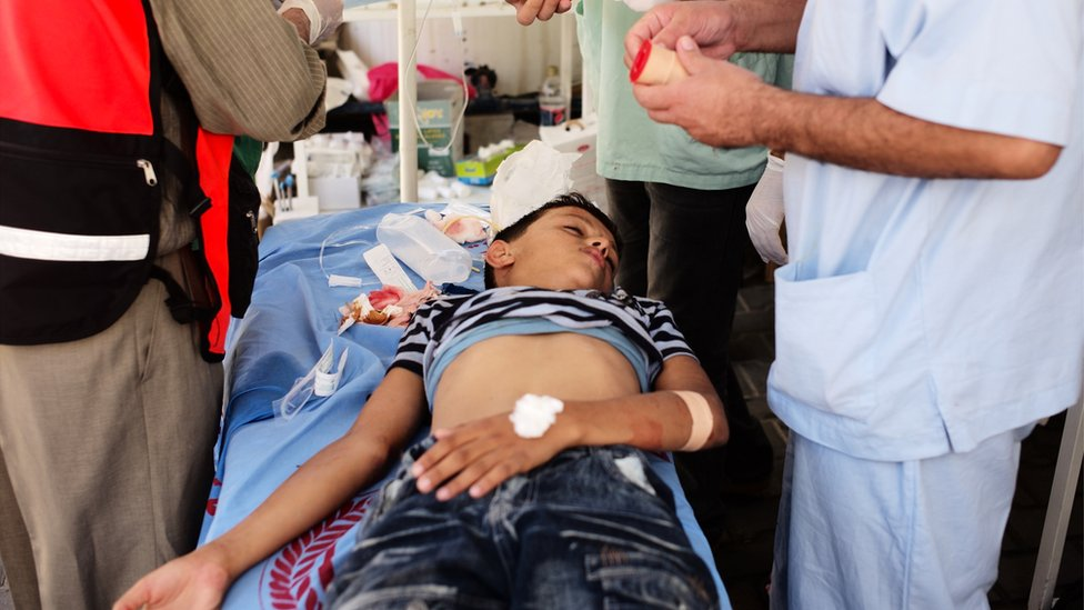 Injured boy in Kuwaiti Hospital, Gaza. Aug 2014