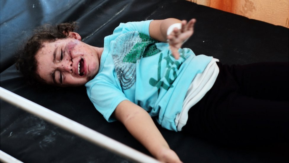 Injured three-year-old Aya in Gaza. Aug 2014