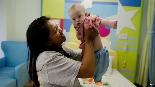 Thai surrogate mother Pattaramon Chanbua (left) holds her baby Gammy, born with Down Syndrome, at the Samitivej hospital, Sriracha district in Chonburi province, Thailand, 4 August 2014