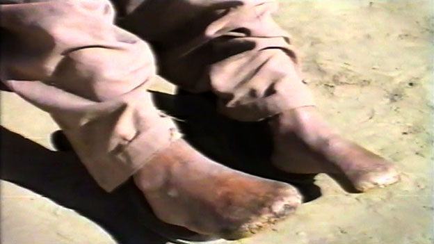 Amir Mehdi's mutilated feet