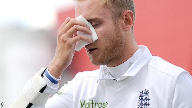 Stuart Broad hit by bouncer