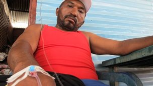 Man looking at camera, intravenous drip going into his hand