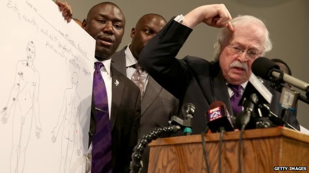 Dr Michael Baden points to his head where one of the gun shots hit Michael Brown as family attorney's Benjamin Crump (L) and Daryl Parks look on during a press conference at the Greater St. Marks Family Church 18 August 2014