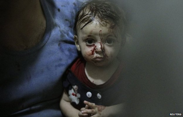 Child injured by what activists say were two air strikes in the north-eastern Damascus suburb of Douma (3 August 2014)