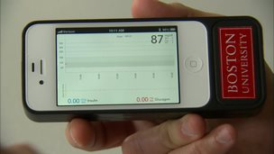 A smartphone with a Boston University logo is held in one hand. On screen can see the algorithm app used for the bionic pancreas device.