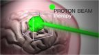 A graphic illustrating proton beam therapy