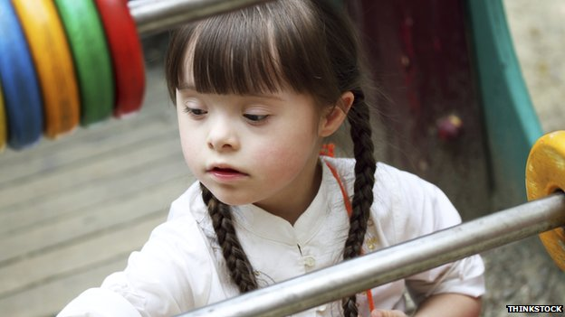 A little girl with Down's syndrome playing with an abacus