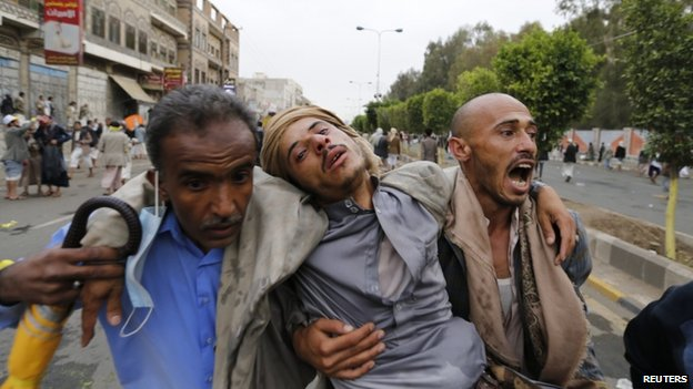 Shia Houthi protesters carry a fellow protester suffering from tear gas inhalation during clashes with riot police along the main road leading to the airport in Sanaa (7 September 2014)