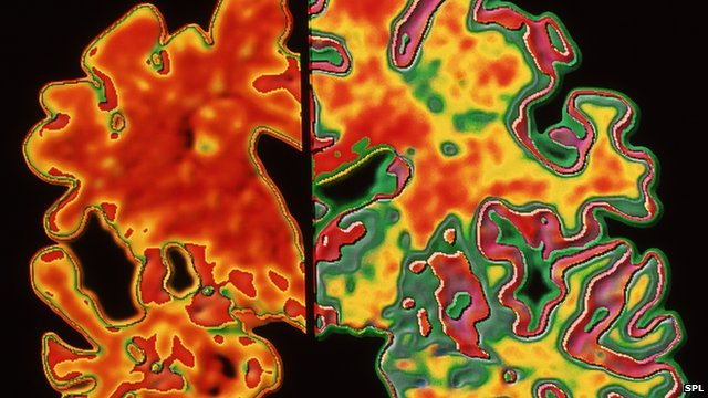 Scan image of brain affected by Alzheimer's disease