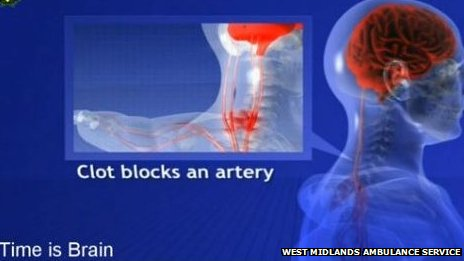 A still image from a video explaining symptoms of stroke