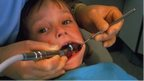 Children hit by tooth decay at three