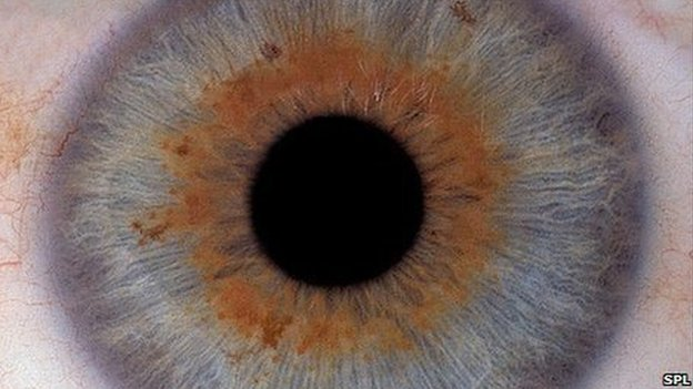 Eye with Age related macular degeneration