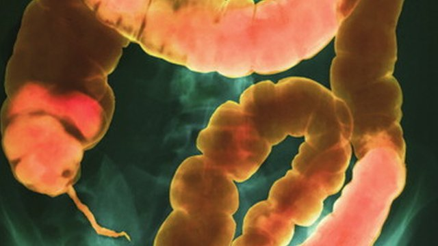 Faecal capsules 'may help stop gut infection'