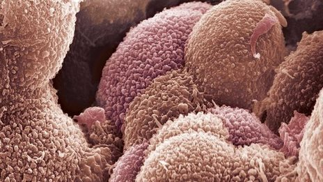 malignant ovarian cyst