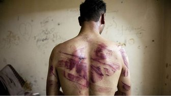 Syrian victim of torture