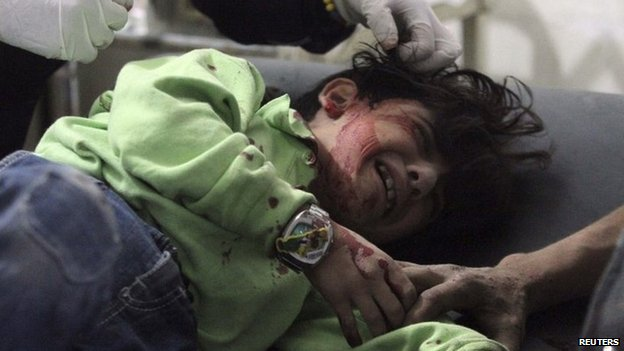 An injured child receives treatment at a field hospital after what activists said were air strikes in the Douma district of Damascus on 20 October 2014