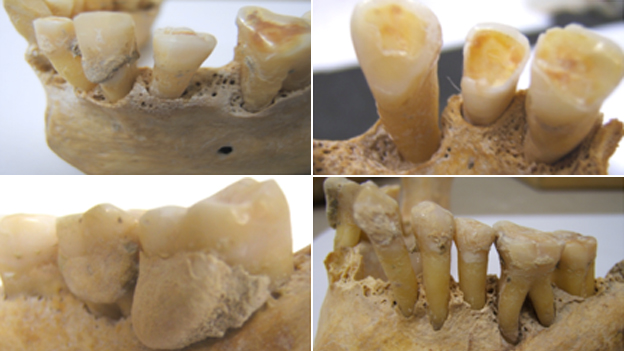 A collection of teeth analysed by the research group