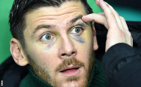 Celtic reserve goalkeeper Lukasz Zaluska