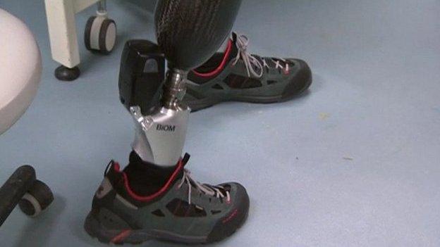 A prosthetic leg