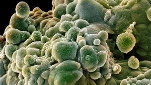 prostate cancer cells