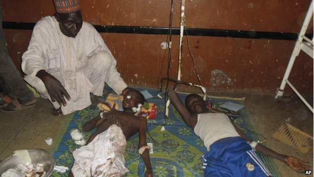 Two children are treated at the general hospital in Potiskum, Nigeria on 10 November 2014