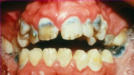 Tooth decay research paper
