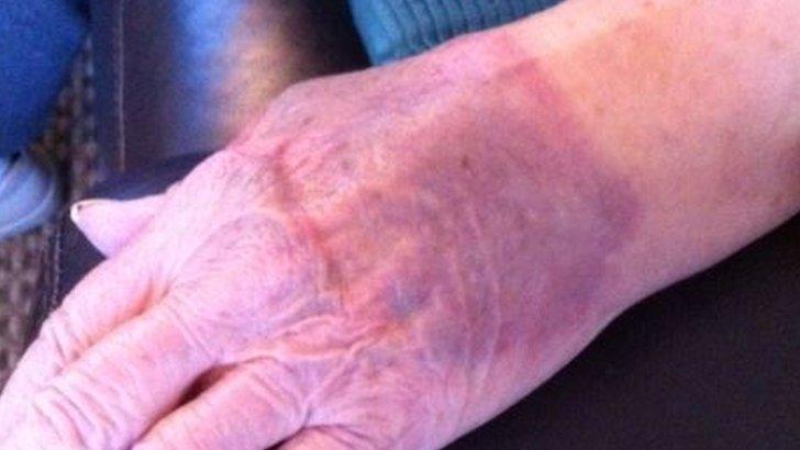 Victim's bruised wrist