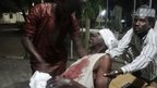 People assist an injured man in Kano. Photo: 28 November 2014
