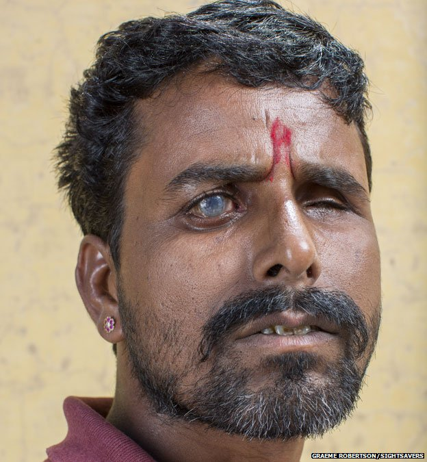 Shyam headshot. You can clearly see his right eye is damaged by cataracts.