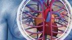 Cardiac graphic